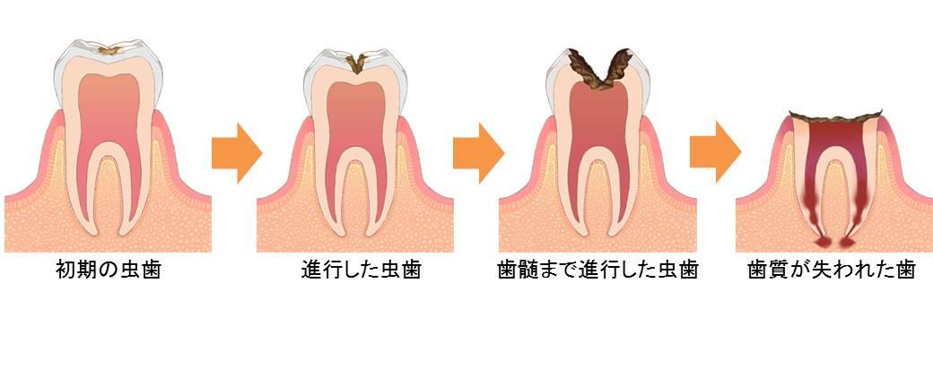 虫歯進行状況